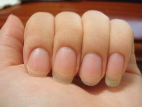 您知道得灰指甲原因有哪些吗